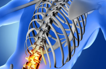 Osteoporosis: Causes, Symptoms, and Prevention